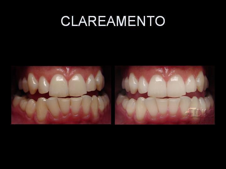 http://clinicaciso.no.comunidades.net/imagens/19.jpg