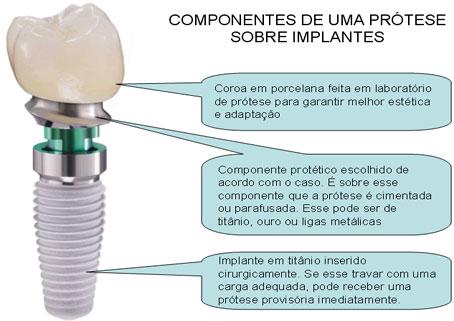 http://clinicaciso.no.comunidades.net/imagens/componentesimplante.jpg
