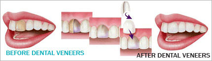 http://www.ashirwaddentalcentre.com/images/dental-veneers-pic.jpg