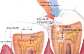 http://www.dentalpress.com.br/cms/wp-content/uploads/2009/10/desenho_dentes_sensiveis.jpg