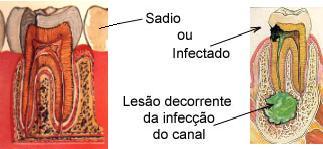 http://clinicaciso.no.comunidades.net/imagens/endodontia1.jpg
