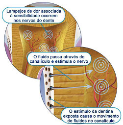 http://clinicaciso.no.comunidades.net/imagens/hipersensibilidadeoralb.jpg