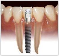 http://clinicaciso.no.comunidades.net/imagens/implant2.jpg