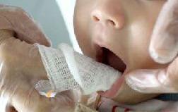 http://clinicaciso.no.comunidades.net/imagens/limpezadentesgaze.jpg