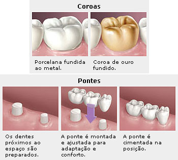 http://www.colgateprofissional.com.br/LeadershipBR/PatientEducation/Articles/Resources/o_que_sao_coroas_e_pontes.jpg