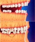 http://clinicaciso.no.comunidades.net/imagens/perda_dental.jpg