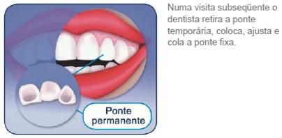 http://clinicaciso.no.comunidades.net/imagens/pontefixa.jpg