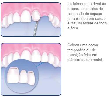http://clinicaciso.no.comunidades.net/imagens/pontefixaoralb.jpg