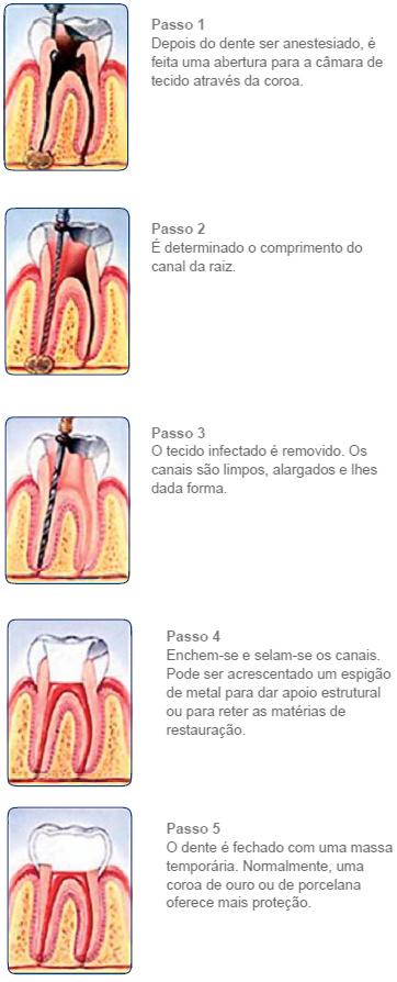 http://clinicaciso.no.comunidades.net/imagens/procedimento_canal.jpg